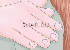 Почему возникают на ногтях рук и ног белые полоски? Что означают белые полоски на ногтях? — Симптомы
