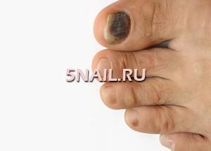 Темные ногти на ногах причина и лечение