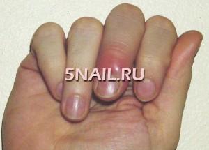 Заусенец на пальце: как не допустить гнойного воспаления