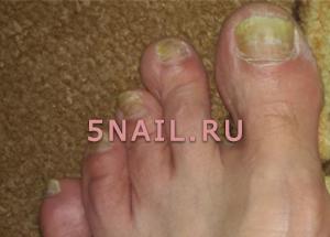 Почему желтеют ногти на ногах и руках у женщин, мужчин, детей: причины. Как лечить желтые ногти на руках и ногах?