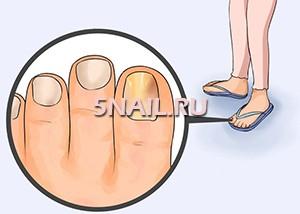 Как распознать грибок ногтей