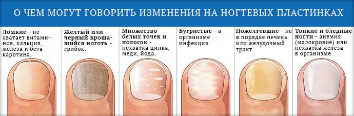 От чего на руках полосатые ногти